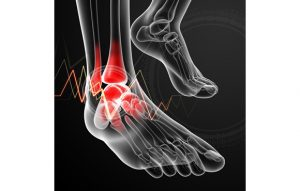 Stress Fractures | Osteopath in Liverpool |  Liverpool Osteopaths